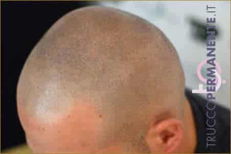 Dermopigmentazione-capelli